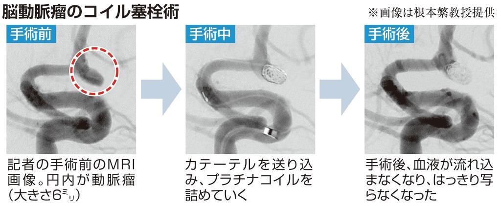 瘤 脳 動脈 [132] 未破裂脳動脈瘤が見つかったら最近の進歩