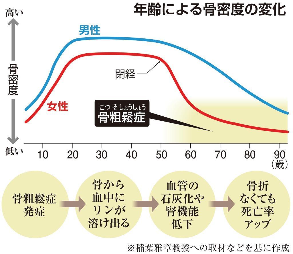 【100歳時代プロジェクト】骨粗鬆症、骨折なくても「危険」 発症で死亡率2倍に